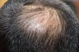 てっぺんはげでもイケメンに頭頂部のハゲにオススメ髪型20選