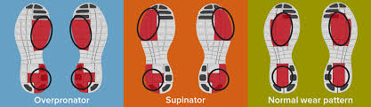 Running Shoe Wear Pattern Classy What Are Your Shoes Telling You EndoRush Physiotherapy App