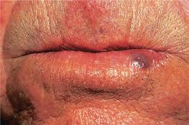 dermatoses of the cavity and lips