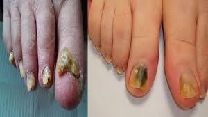 natural home remes for toenail fungus how to cure toenail fungus natural treatment