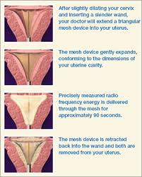 endometrial ablation weight loss myflow