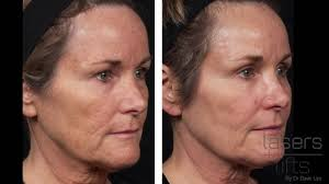 How Long Does It Take To Heal From Co2 Laser Resurfacing Fractional