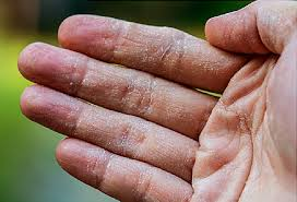 Eczema Video: The Facts on Dry, Itchy, Scaly Skin