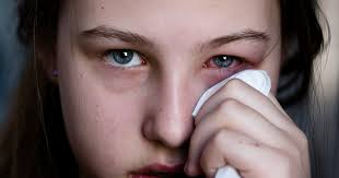 Doctors Note For Pink Eye Types Of Conjunctivitis Bacterial Viral Allergic All