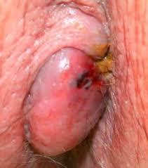 Internal hemorrhoids साठी इमेज परिणाम