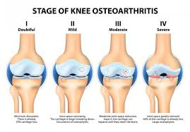 grade 4 osteoarthritis of the knee