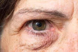 dark spots under eye