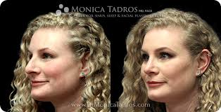The discomfort after a nose job is typically minimal. Rhinoplasty Cost In Nj Nyc Average Nose Job Cost