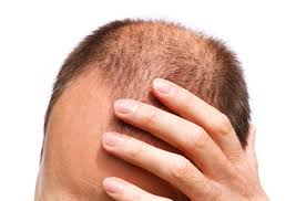 Cure For Male Pattern Baldness Magnificent Male Pattern Baldness Cure And Treatment What Causes And Signs Of