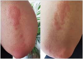 Getting a 'covid arm' rash after the moderna vaccine might be itchy, but it's no big deal. Covid 19 Elbows First Report In Saudi Arabia Al Dawsari 2020 International Journal Of Dermatology Wiley Online Library