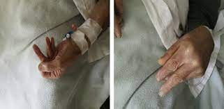 Guillain-Barré Syndrome Related to ...