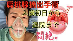 扁桃 腺 炎 手術