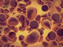 Leukemia Causes Treatment And Early Signs
