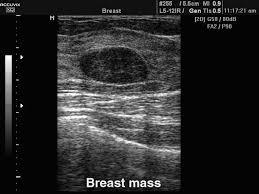 УЗИ молочных желез Варианты патологий и диагностики в клинике  фиброаденомы молочных желез