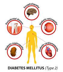 Diabet mellitus tip 2