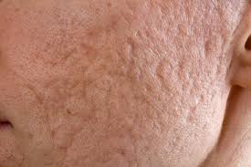 get rid of acne scars with a laser