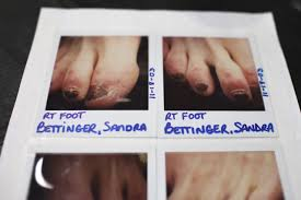 polaroids of bettinger s feet from her al files showing some of the damage caused to both