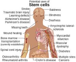 stem cell  diseases and conditions where stem cell treatment is being investigated