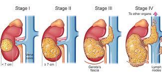 renal carcinoma