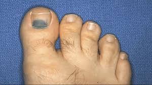 toenail falling off do this trick