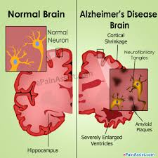 Stages Of Alzheimer S Disease Chart Alzheimers Disease Causes Stages Treatment Prognosis