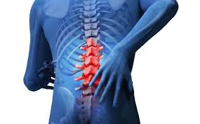 「変形性腰椎症」の画像検索結果