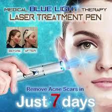 <b>Medical Blue Light Therapy</b> Laser Treatment Pen Soft Scar Pimple ...