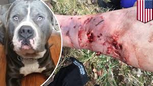 pitbull dog attack. Plain Pitbull Pitbull Attack Cyclist Viciously Attacked By 2yearold Dog Posts Wounds  To Facebook  TomoNews Intended Dog Attack T