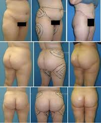 Kết quả hình ảnh cho Total tummy tuck before and after