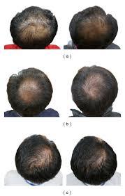 gotu kola hair loss. Interesting Kola Results Of Pumpkin Seed Oil On Balding Men In Gotu Kola Hair Loss E