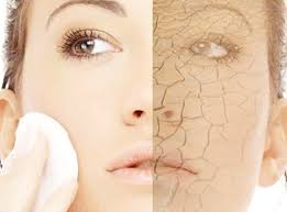 Tips for Your Dry Skin - Arabia Weddings