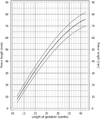 Femur Length Size Chart After Chitty Et Al 6 Download