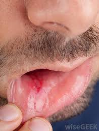 symptoms of herpes esophagitis