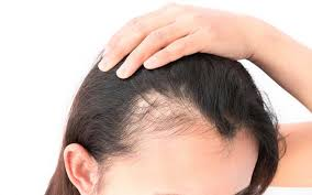 what s causing your hair loss