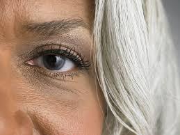 what causes dark under eye circles