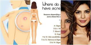 Pimples On Body Chart This Body Chart Explains Why Your Acne Keeps Coming Back