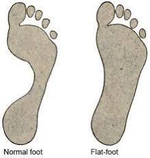 Flat Footed Exercising And Flat Feet Healthguidance