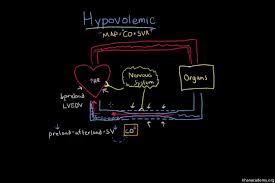 Blood Loss Shock Chart Hypovolemic Shock Video Shock Khan Academy