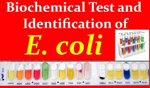 Biochemical Test And Identification Of E Coli