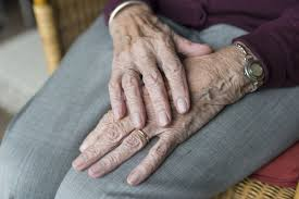 Managing Pruritus or Itchy Skin at End of Life