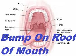 p on roof of mouth grow health