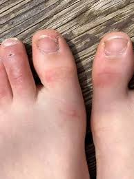 3 kinds of rashes found: Dermatologist Explains If Covid Toes Skin Rashes Are Symptoms Tied To Virus Infection Wkrc