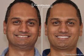 smiling after overbite correction performed with no surgery or braces
