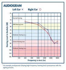 Diagnosing Hearing Loss Terrace Terrace Hearing Clinic Ltd