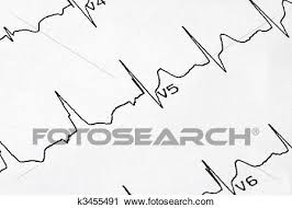 A Macro Picture Of The Ekg Chart Stock Image
