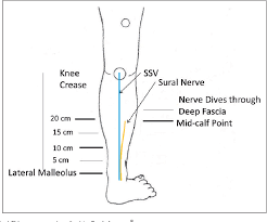 The Sural Nerve Sonographic Anatomy Variability And