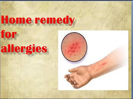home remedies for allergies - YouTube