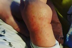 Skin rashes could be another surprising symptom of the coronavirus, according to dermatologists and doctors. Covid 19 Bury St Edmunds Nurse S Rash Warning Bbc News