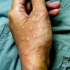 Hives and angioedema | Finland| PDF | PPT| Case Reports | Symptoms ...