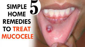 mucocele mucous cyst
